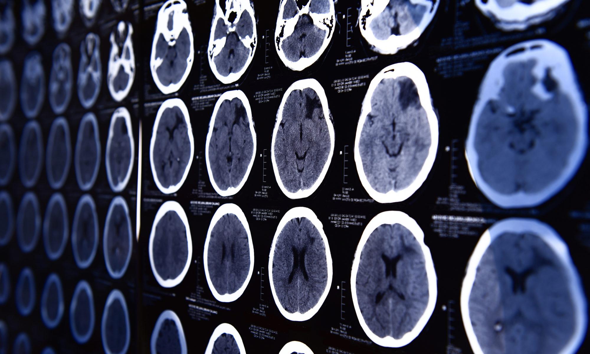 IRM Radiologie Scanner